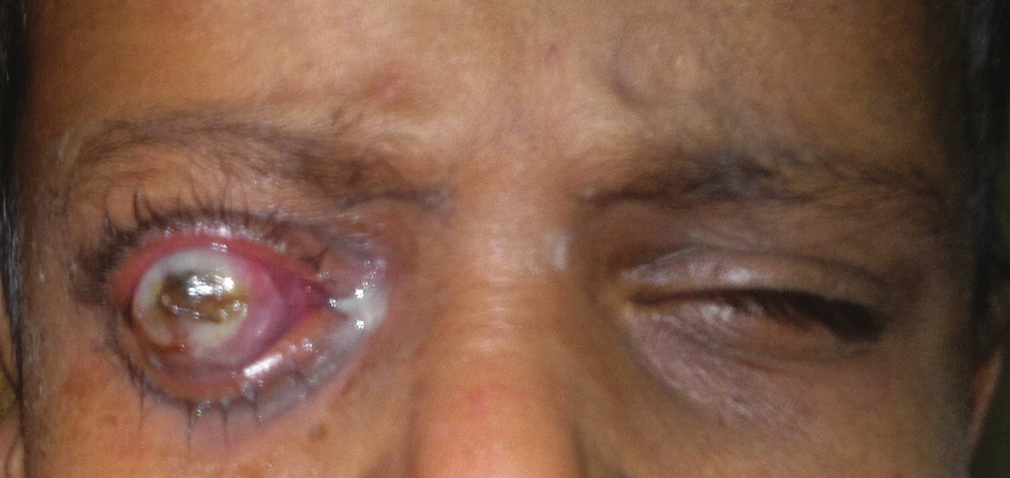 Figure 2: Child with keratomalacia right eye